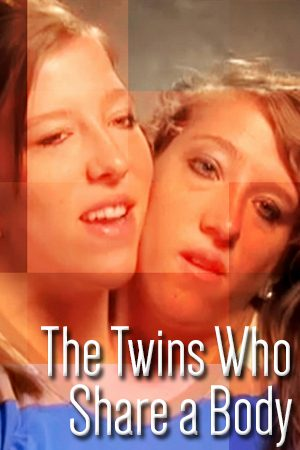 The Twins Who Share a Body