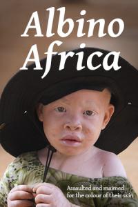 Albino Africa